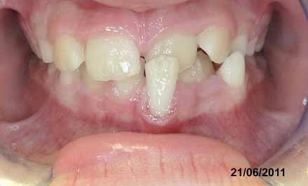 La fusione dentale e il dente bigemino